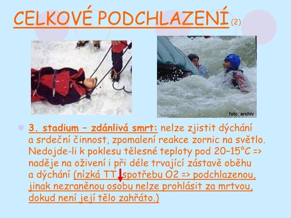 CELKOVÉ PODCHLAZENÍ (2) 3.