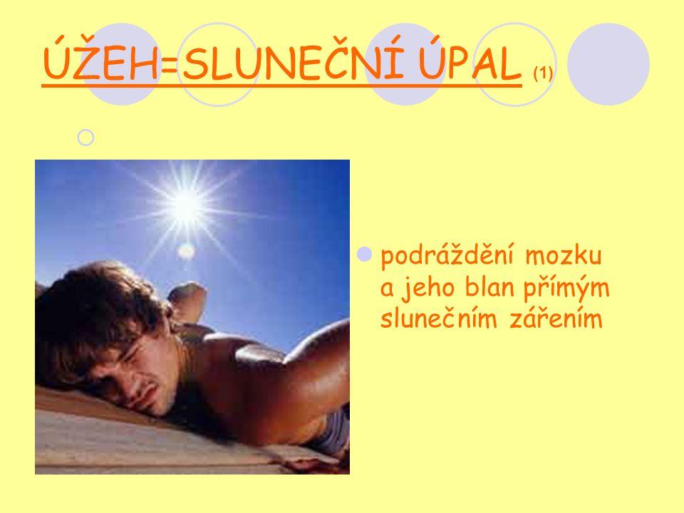 ÚŽEH=SLUNEČNÍ ÚPAL (1)  podráždění mozku a jeho blan přímým slunečním zářením