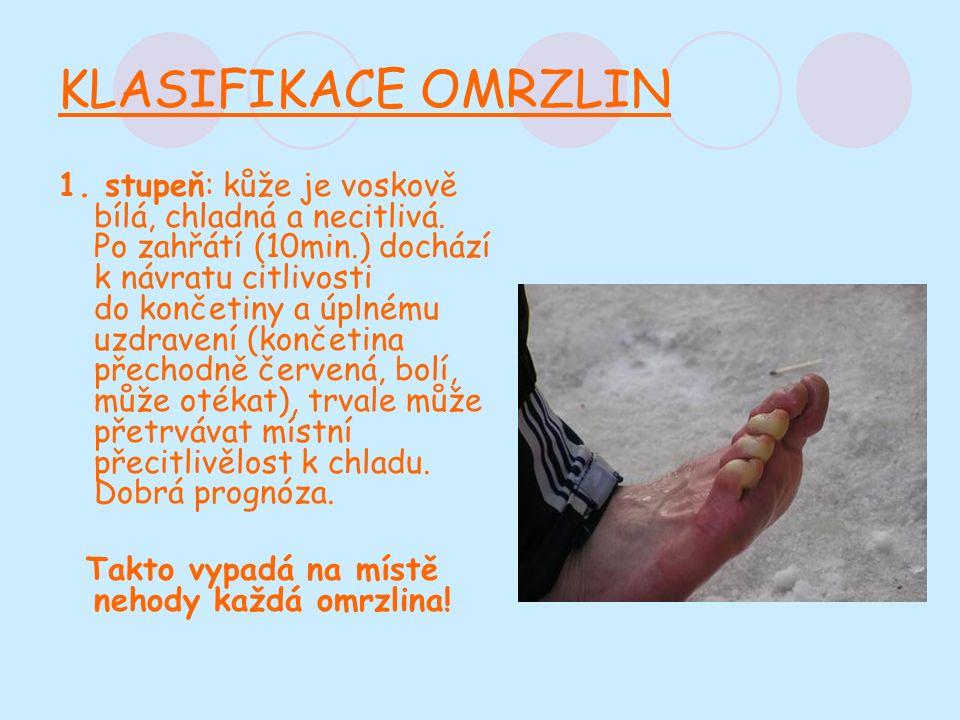 KLASIFIKACE OMRZLIN 1. stupeň: kůže je voskově bílá, chladná a necitlivá.