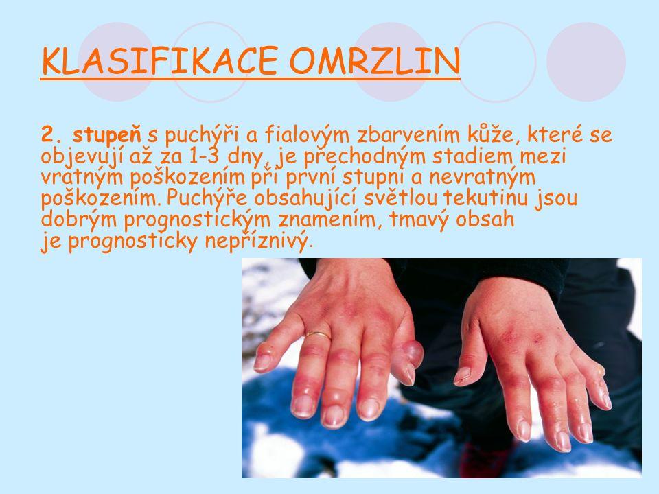 KLASIFIKACE OMRZLIN 2.