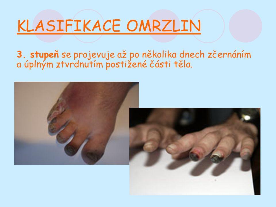 KLASIFIKACE OMRZLIN 3.
