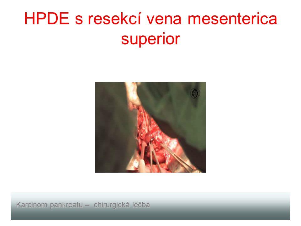 HPDE s resekcí vena mesenterica superior Karcinom pankreatu – chirurgická léčba