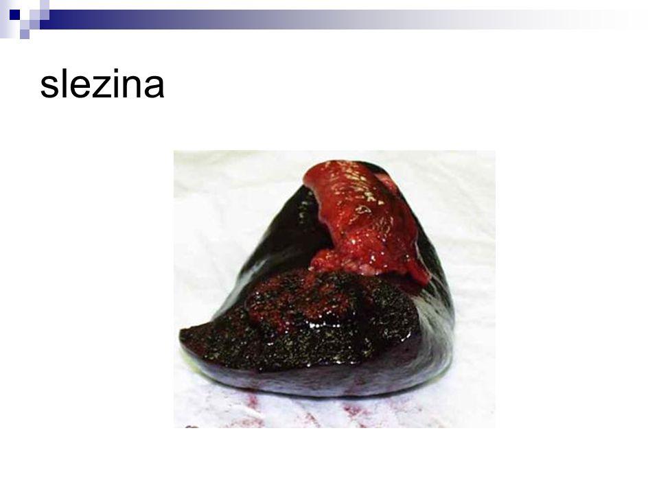 2.) Brzlík -je žláza uložená za hrudní kostí -v pubertě se zmenšuje -vznik bílých krvinek -produkce hormonů