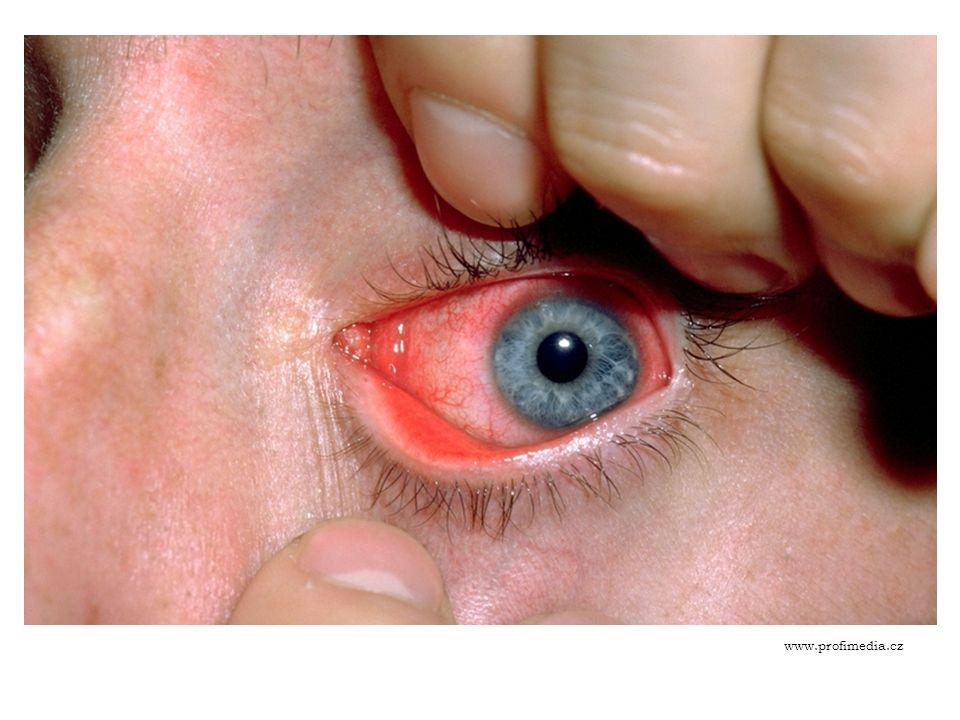 ZÁNĚT SPOJIVEK Příčiny: podráždění oka UV zářením při dlouhodobém pobytu na sněhu nebo při svařování bez ochranných brýlí (masky), případně jinými škodlivinami (cigaretový kouř aj.) Příznaky: zarudnutí oka, řezání a pálení – pocit písku v očích
