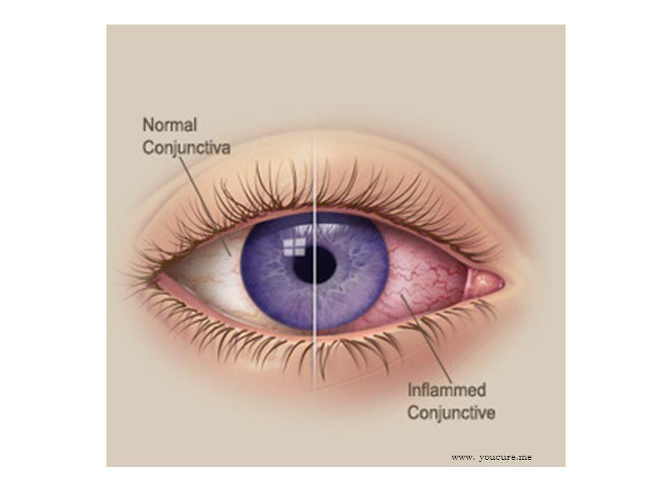 ZÁNĚT SPOJIVEK První pomoc: Vypláchněte oči roztokem Opthal Zakryjte obě oči chladným obkladem Pokud se obtíže během 24 hodin nelepší nebo zhoršují (vytéká hnis), vyhledejte lékaře