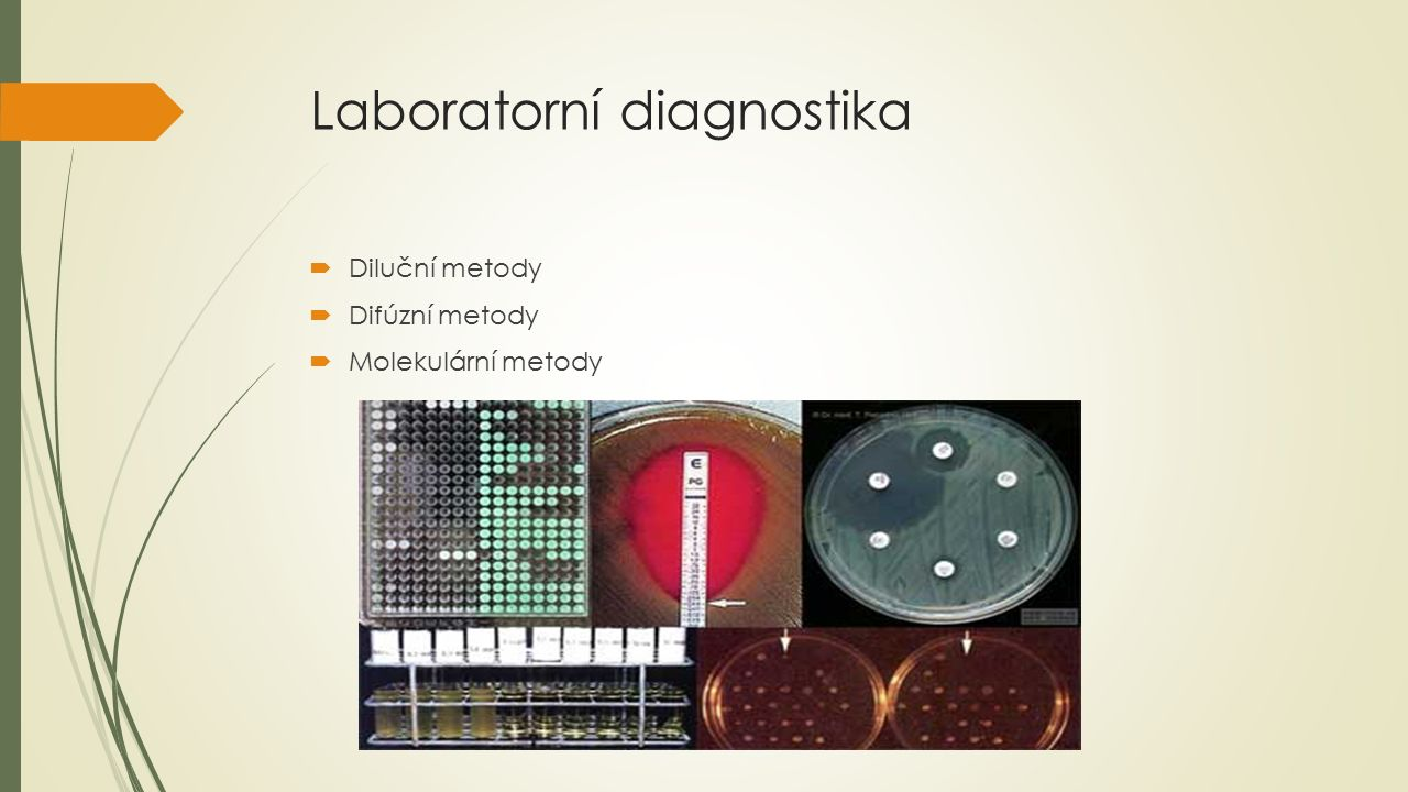 Laboratorní diagnostika  Diluční metody  Difúzní metody  Molekulární metody