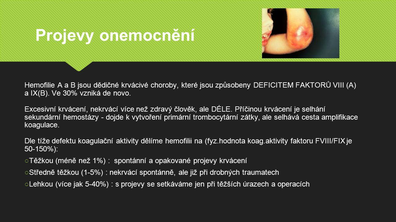 Projevy onemocnění Hemofilie A a B jsou dědičné krvácivé choroby, které jsou způsobeny DEFICITEM FAKTORŮ VIII (A) a IX(B).