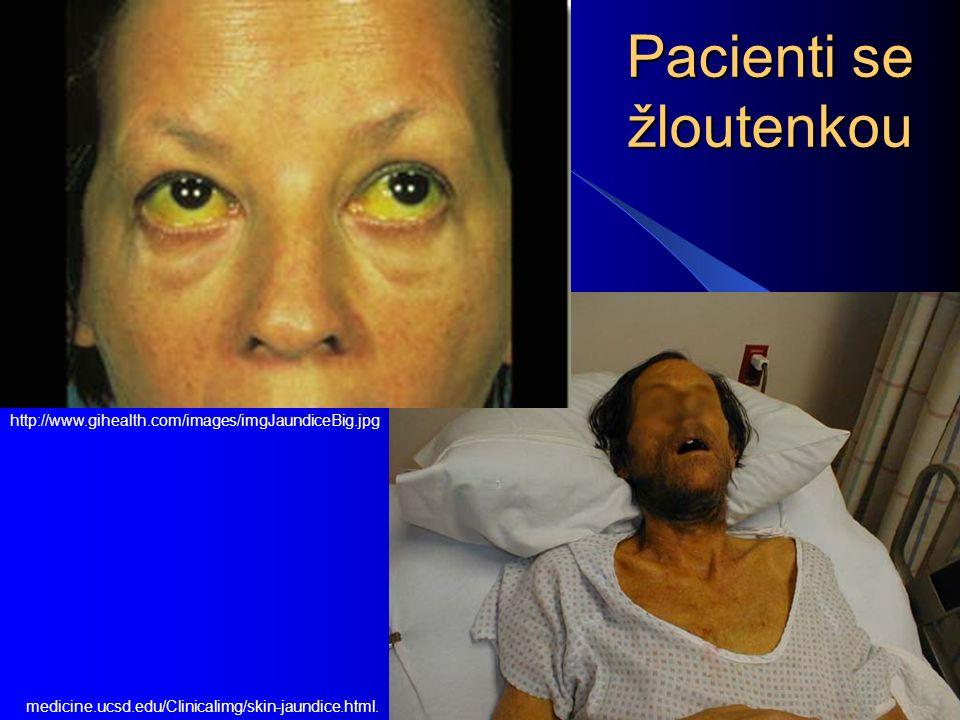 Pacienti se žloutenkou medicine.ucsd.edu/Clinicalimg/skin-jaundice.html. http://www.gihealth.com/images/imgJaundiceBig.jpg