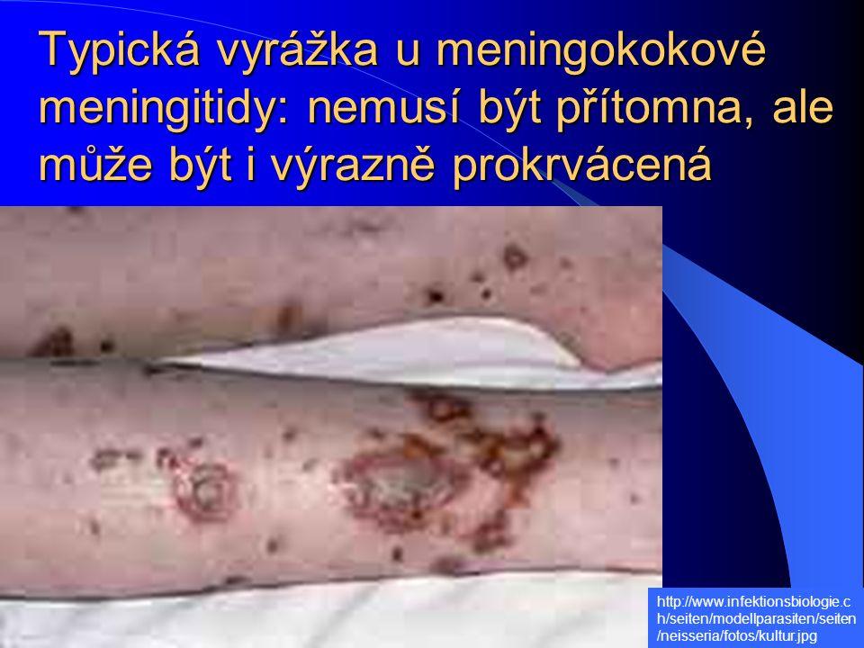 Typická vyrážka u meningokokové meningitidy: nemusí být přítomna, ale může být i výrazně prokrvácená http://www.infektionsbiologie.c h/seiten/modellparasiten/seiten /neisseria/fotos/kultur.jpg