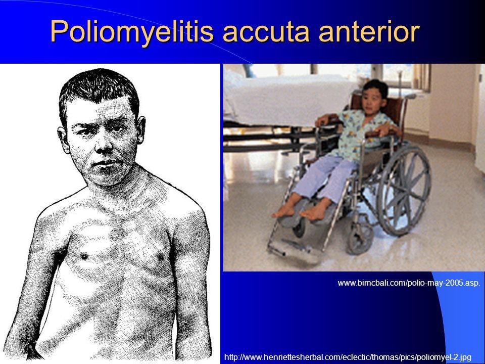 Poliomyelitis accuta anterior http://www.henriettesherbal.com/eclectic/thomas/pics/poliomyel-2.jpg www.bimcbali.com/polio-may-2005.asp.