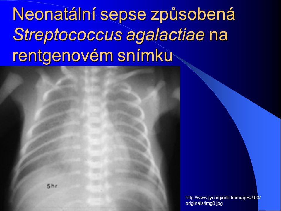 Neonatální sepse způsobená Streptococcus agalactiae na rentgenovém snímku http://www.jyi.org/articleimages/463/ originals/img0.jpg