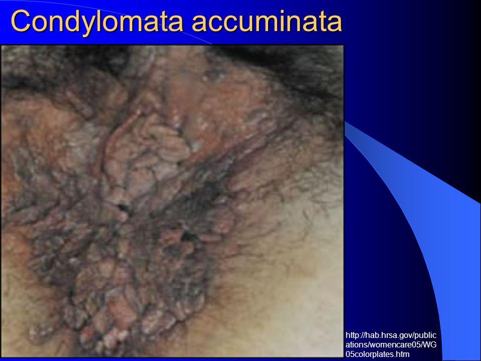 Condylomata accuminata http://hab.hrsa.gov/public ations/womencare05/WG 05colorplates.htm