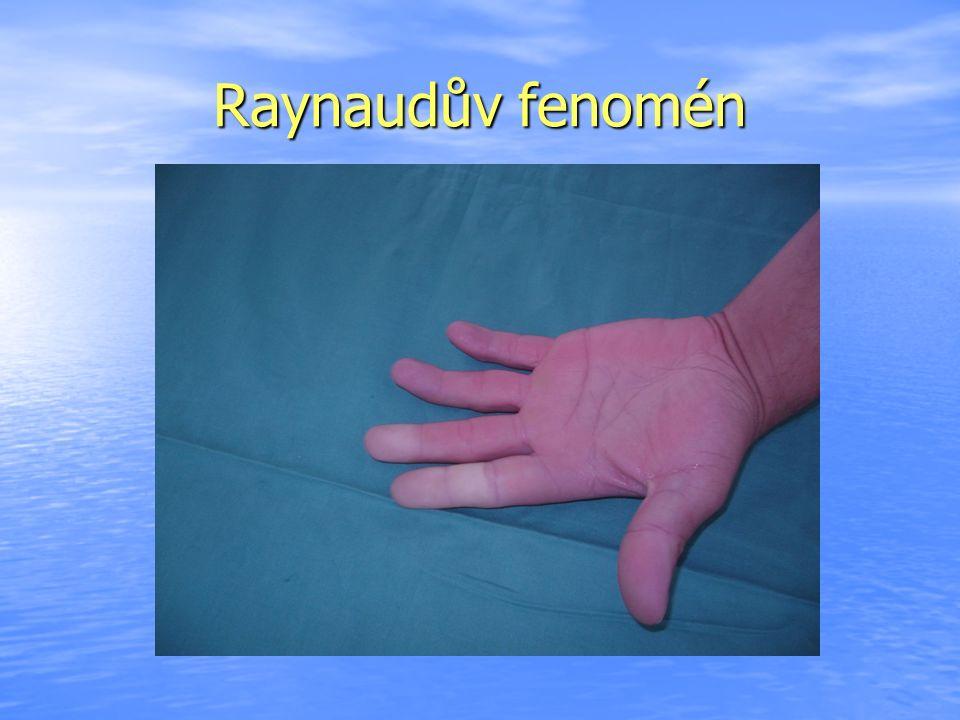 Raynaudův fenomén
