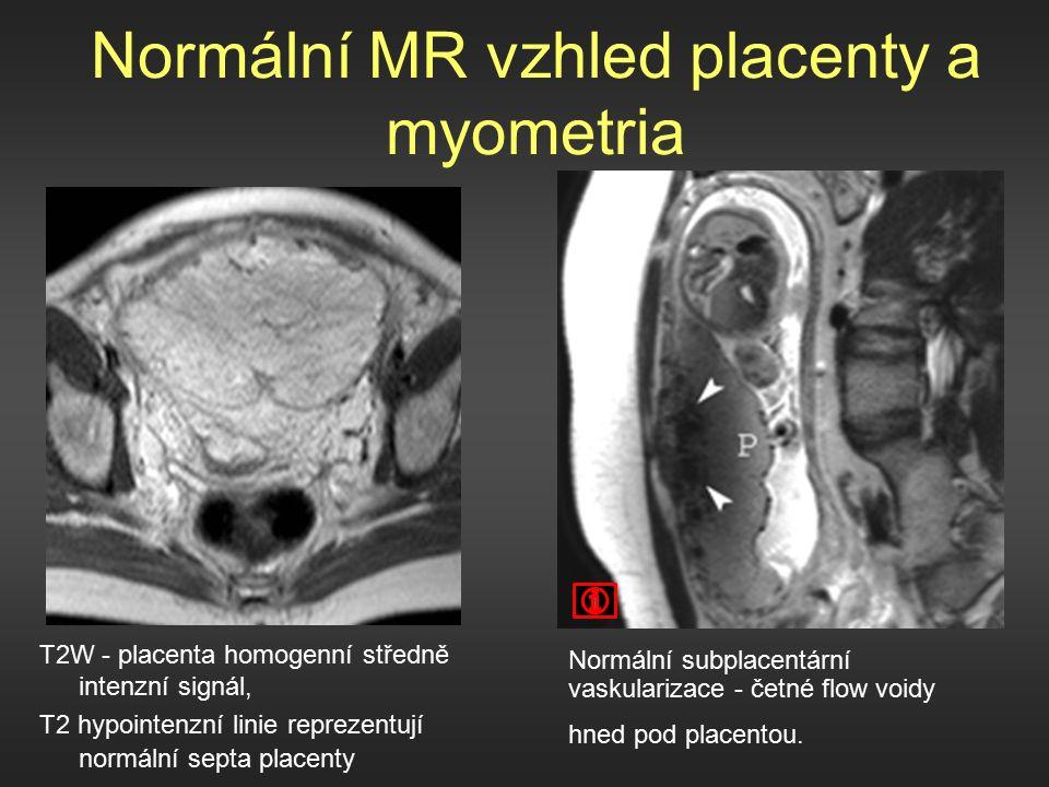 Normální MR vzhled placenty a myometria T2W - placenta homogenní středně intenzní signál, T2 hypointenzní linie reprezentují normální septa placenty Normální subplacentární vaskularizace - četné flow voidy hned pod placentou.