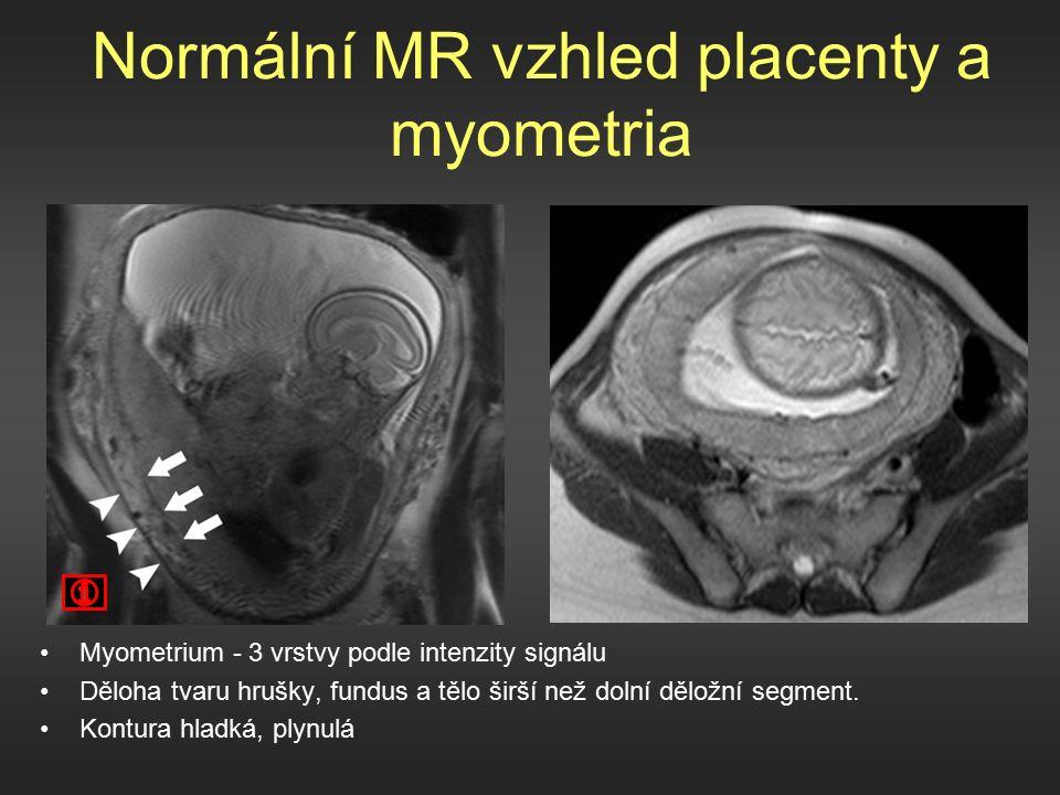 Normální MR vzhled placenty a myometria Myometrium - 3 vrstvy podle intenzity signálu Děloha tvaru hrušky, fundus a tělo širší než dolní děložní segment.