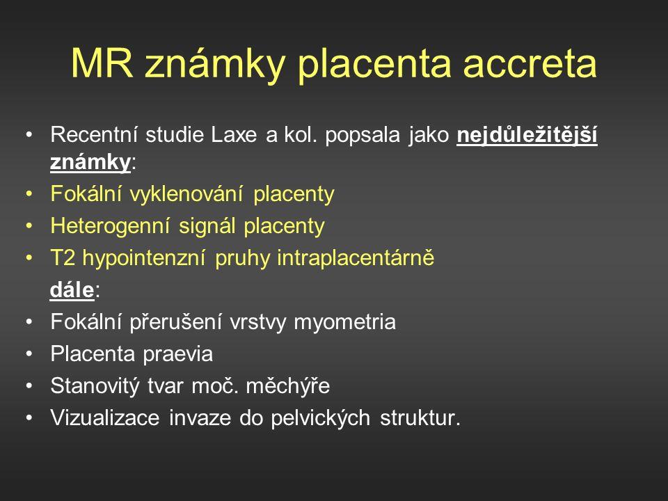 MR známky placenta accreta Recentní studie Laxe a kol.