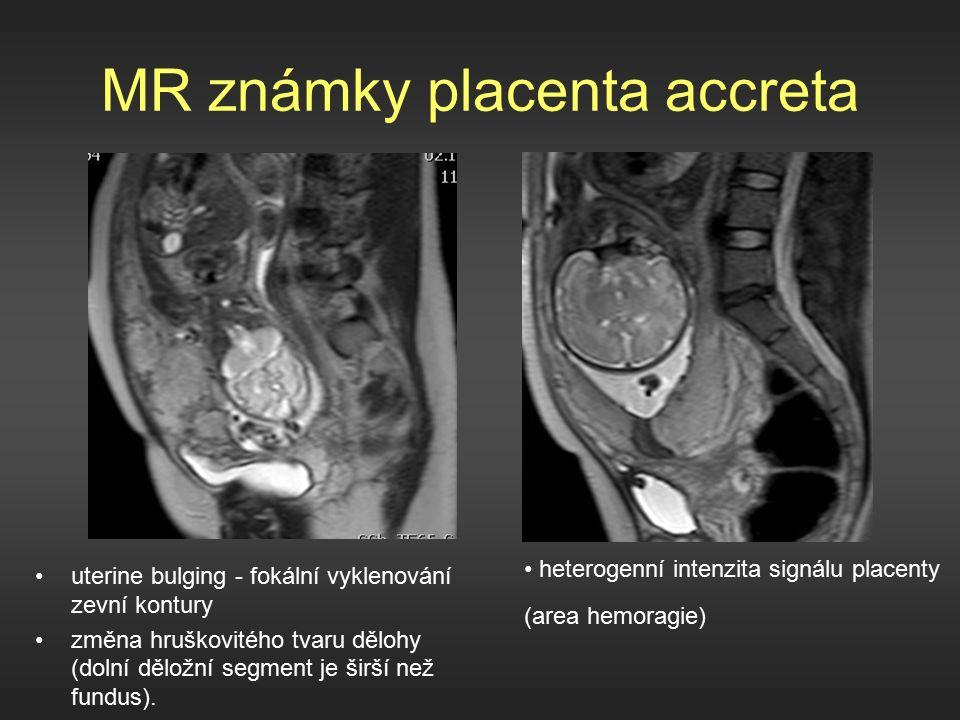 MR známky placenta accreta uterine bulging - fokální vyklenování zevní kontury změna hruškovitého tvaru dělohy (dolní děložní segment je širší než fundus).
