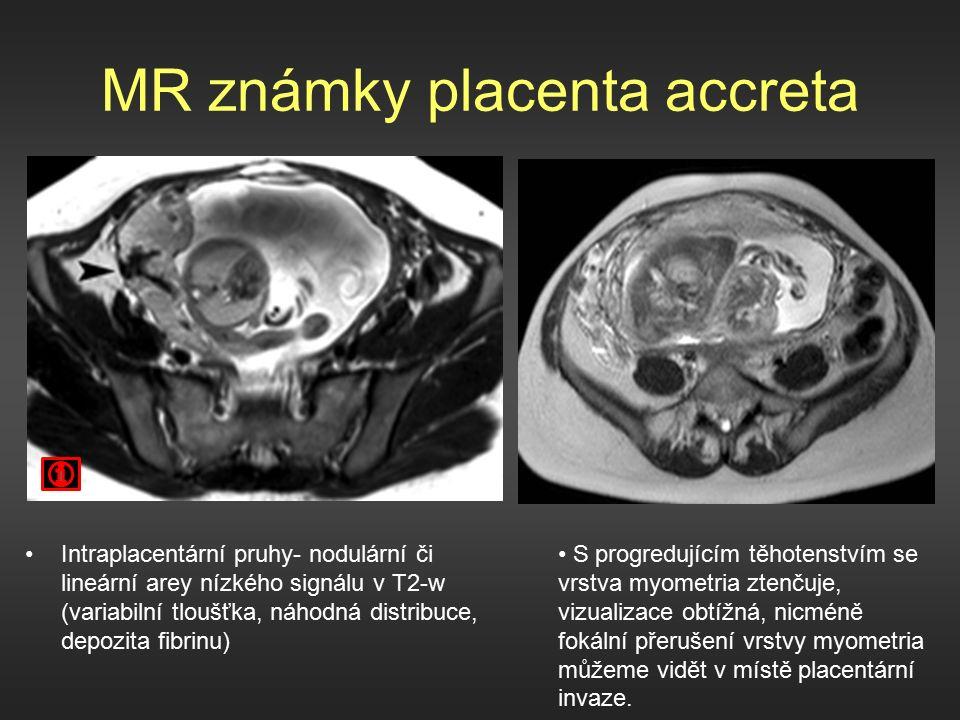 MR známky placenta accreta Intraplacentární pruhy- nodulární či lineární arey nízkého signálu v T2-w (variabilní tloušťka, náhodná distribuce, depozita fibrinu) S progredujícím těhotenstvím se vrstva myometria ztenčuje, vizualizace obtížná, nicméně fokální přerušení vrstvy myometria můžeme vidět v místě placentární invaze.