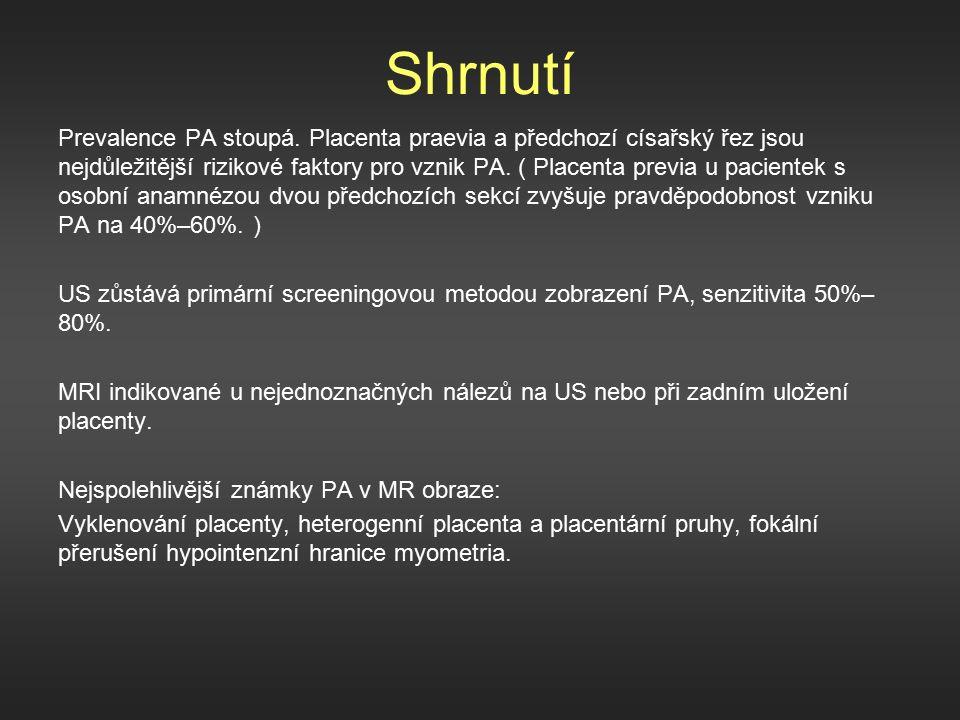 Shrnutí Prevalence PA stoupá.