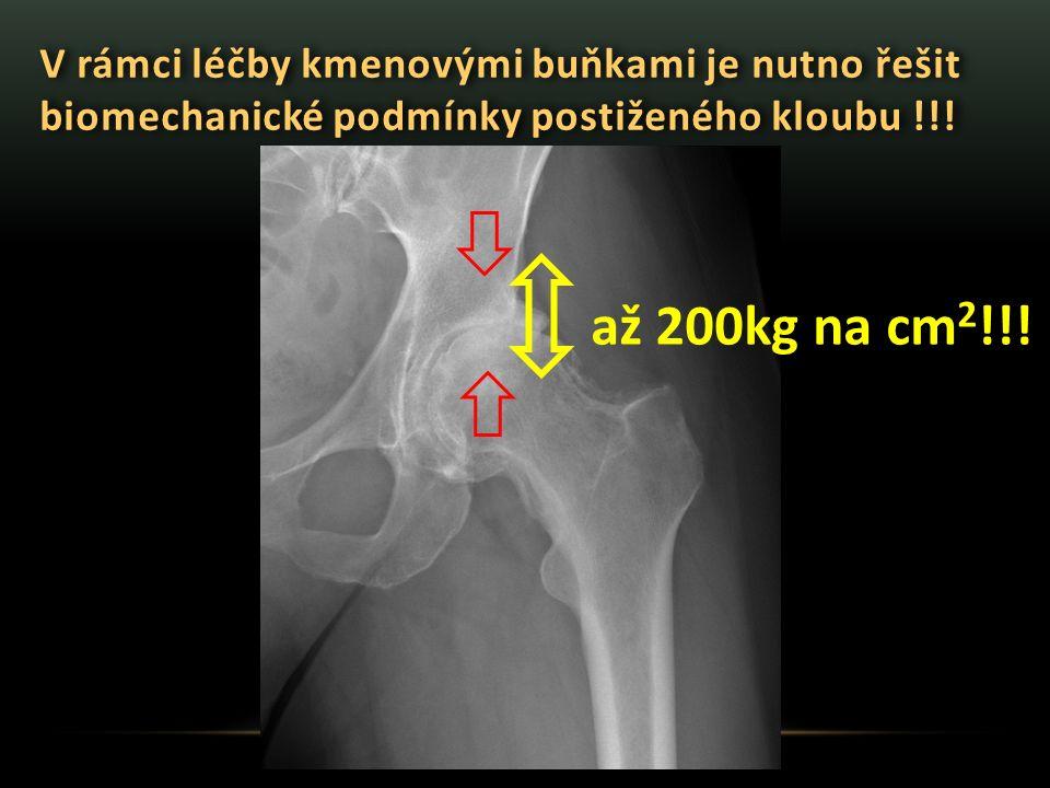 V rámci léčby kmenovými buňkami je nutno řešit biomechanické podmínky postiženého kloubu !!! až 200kg na cm 2 !!!