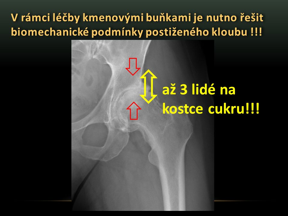V rámci léčby kmenovými buňkami je nutno řešit biomechanické podmínky postiženého kloubu !!! až 3 lidé na kostce cukru!!!