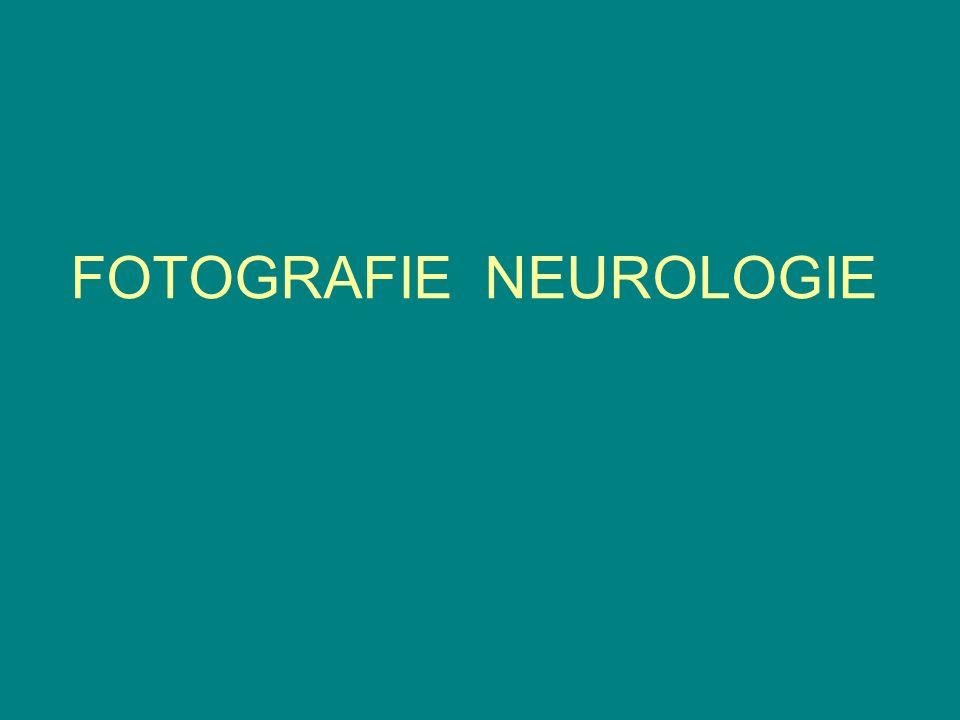 FOTOGRAFIE NEUROLOGIE