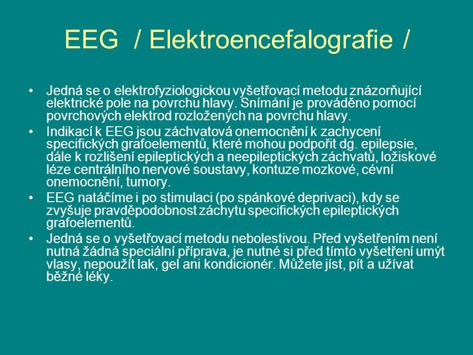 EEG / Elektroencefalografie / Jedná se o elektrofyziologickou vyšetřovací metodu znázorňující elektrické pole na povrchu hlavy.