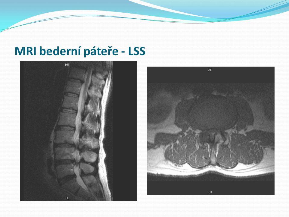 MRI bederní páteře - LSS