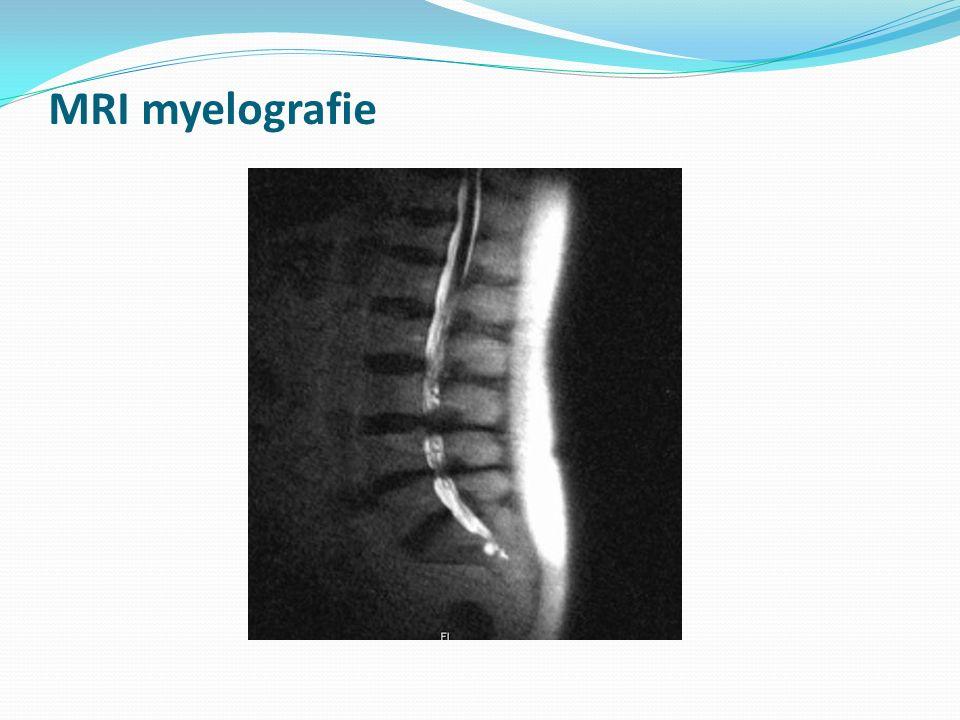 MRI myelografie