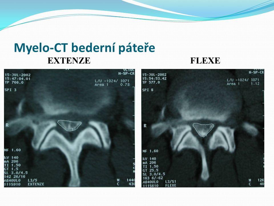 Myelo-CT bederní páteře EXTENZEFLEXE
