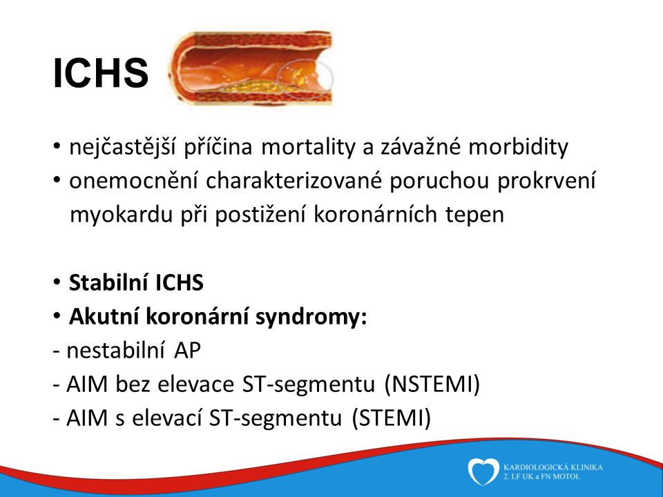 Rizikové faktory ICHS Ovlivnitelné : Hyperlipidémie Nadváha Hypertenzní choroba Diabetes mellitus Nikotinismus Nedostatek fyzické aktivity Stres Neovlivnitelené: Věk (muž nad 45, žena nad 55 let) Pohlaví Genetické faktory Osobní anamnéze