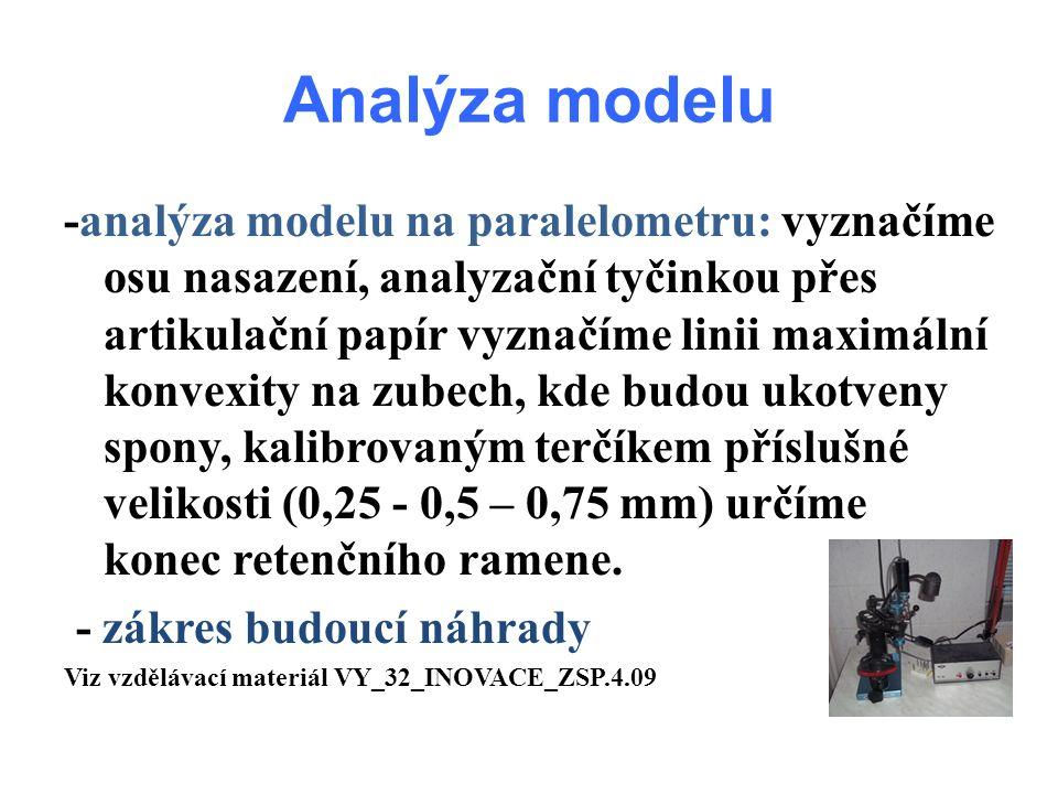 Analýza modelu -analýza modelu na paralelometru: vyznačíme osu nasazení, analyzační tyčinkou přes artikulační papír vyznačíme linii maximální konvexity na zubech, kde budou ukotveny spony, kalibrovaným terčíkem příslušné velikosti (0,25 - 0,5 – 0,75 mm) určíme konec retenčního ramene.