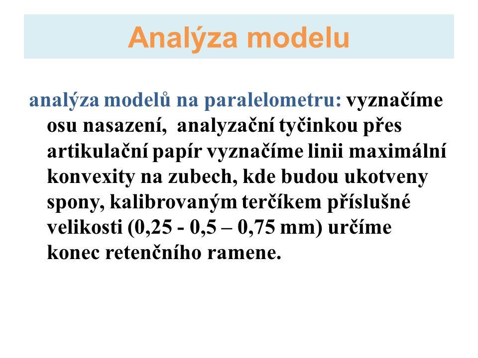 analýza modelů na paralelometru: vyznačíme osu nasazení, analyzační tyčinkou přes artikulační papír vyznačíme linii maximální konvexity na zubech, kde budou ukotveny spony, kalibrovaným terčíkem příslušné velikosti (0,25 - 0,5 – 0,75 mm) určíme konec retenčního ramene.