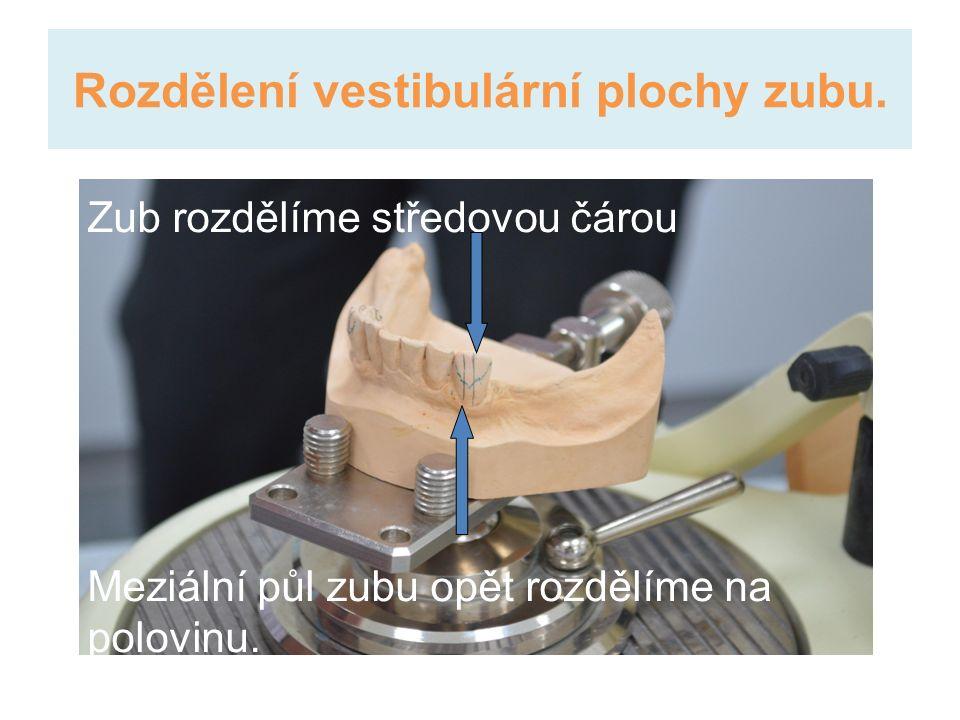 Rozdělení vestibulární plochy zubu.
