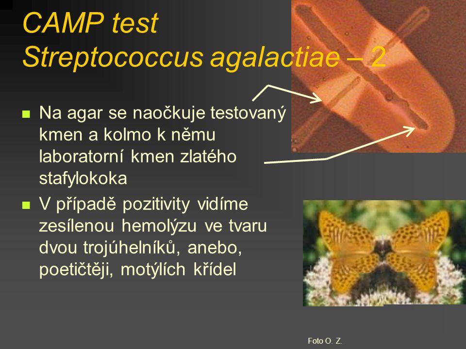 CAMP test Streptococcus agalactiae – 2 Na agar se naočkuje testovaný kmen a kolmo k němu laboratorní kmen zlatého stafylokoka V případě pozitivity vidíme zesílenou hemolýzu ve tvaru dvou trojúhelníků, anebo, poetičtěji, motýlích křídel Foto O.