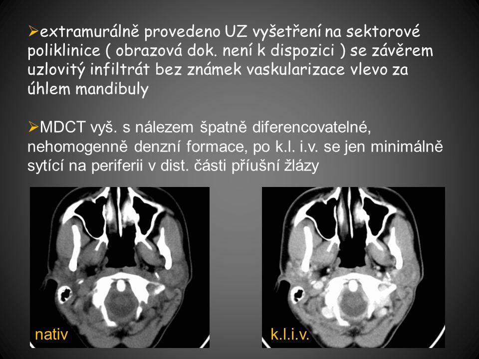  extramurálně provedeno UZ vyšetření na sektorové poliklinice ( obrazová dok.