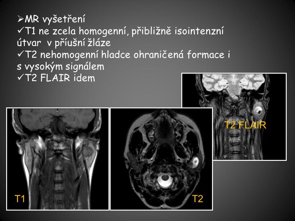  MR vyšetření T1 ne zcela homogenní, přibližně isointenzní útvar v příušní žláze T2 nehomogenní hladce ohraničená formace i s vysokým signálem T2 FLAIR idem T2 T2 FLAIR T1