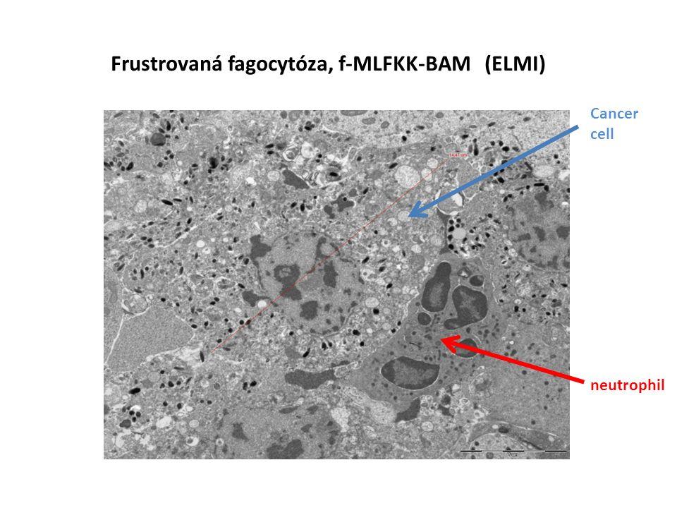 Frustrovaná fagocytóza, f-MLFKK-BAM (ELMI) Cancer cell neutrophil
