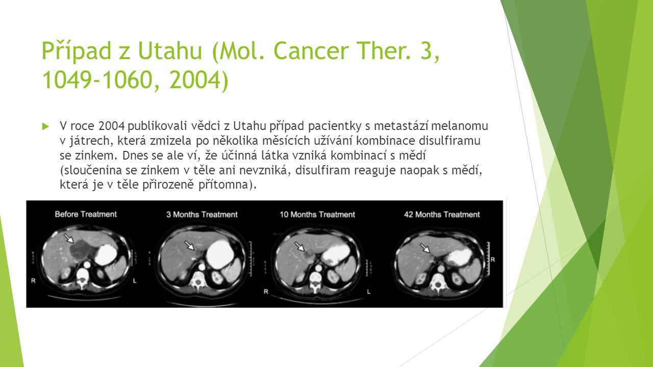 Případ z Utahu (Mol. Cancer Ther. 3, 1049-1060, 2004)  V roce 2004 publikovali vědci z Utahu případ pacientky s metastází melanomu v játrech, která z