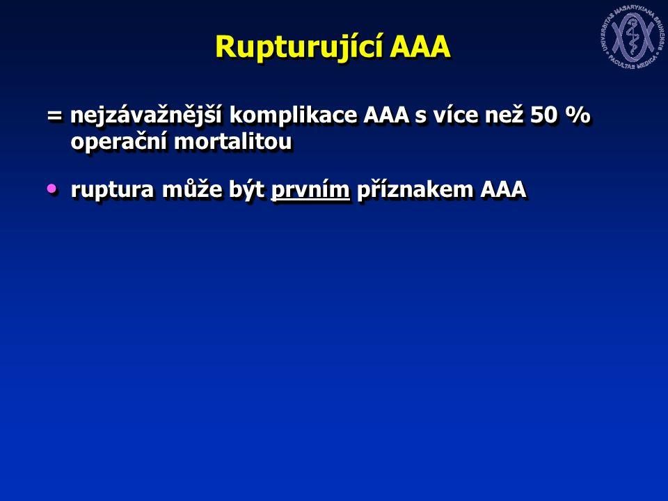 Rupturující AAA = nejzávažnější komplikace AAA s více než 50 % operační mortalitou ruptura může být prvním příznakem AAA ruptura může být prvním příznakem AAA = nejzávažnější komplikace AAA s více než 50 % operační mortalitou ruptura může být prvním příznakem AAA ruptura může být prvním příznakem AAA