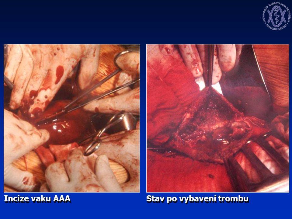 Incize vaku AAA Stav po vybavení trombu