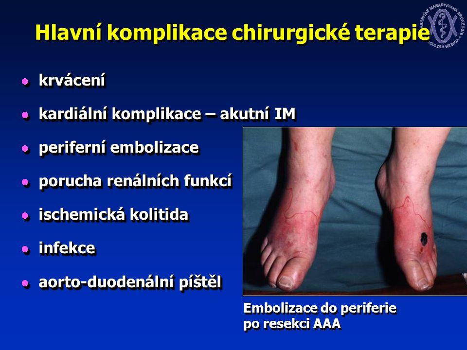 Hlavní komplikace chirurgické terapie krvácení krvácení kardiální komplikace – akutní IM kardiální komplikace – akutní IM periferní embolizace periferní embolizace porucha renálních funkcí porucha renálních funkcí ischemická kolitida ischemická kolitida infekce infekce aorto-duodenální píštěl aorto-duodenální píštěl krvácení krvácení kardiální komplikace – akutní IM kardiální komplikace – akutní IM periferní embolizace periferní embolizace porucha renálních funkcí porucha renálních funkcí ischemická kolitida ischemická kolitida infekce infekce aorto-duodenální píštěl aorto-duodenální píštěl Embolizace do periferie po resekci AAA
