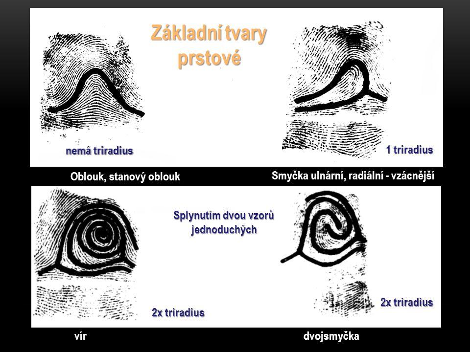 Oblouk, stanový oblouk Smyčka ulnární, radiální - vzácnější vírdvojsmyčka Základní tvary prstové 1 triradius nemá triradius 2x triradius Splynutím dvou vzorů jednoduchých