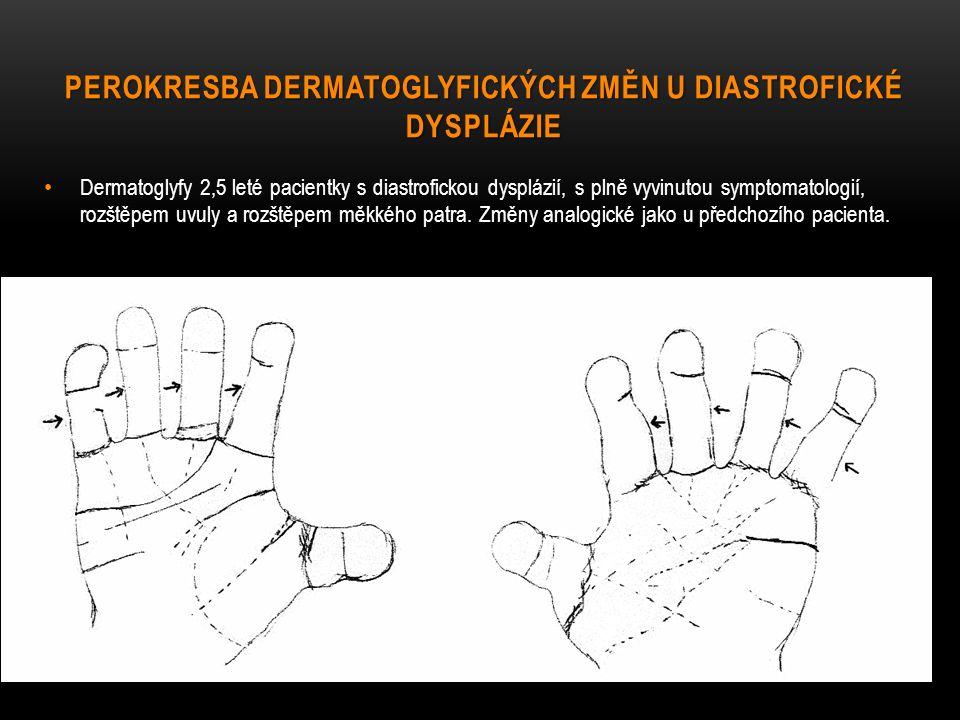 PEROKRESBA DERMATOGLYFICKÝCH ZMĚN U DIASTROFICKÉ DYSPLÁZIE Dermatoglyfy 2,5 leté pacientky s diastrofickou dysplázií, s plně vyvinutou symptomatologií, rozštěpem uvuly a rozštěpem měkkého patra.