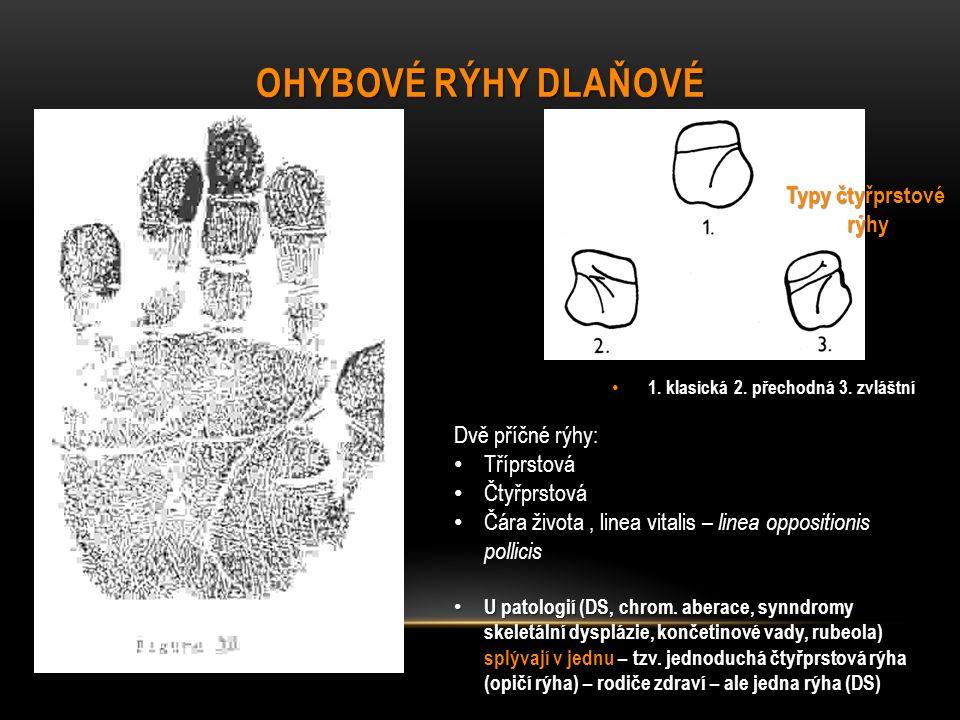 OHYBOVÉ RÝHY DLAŇOVÉ 1.klasická 2. přechodná 3. zvláštní 1.