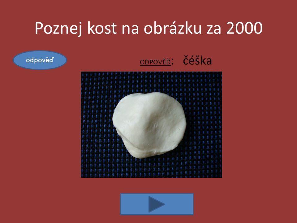 Poznej kost na obrázku za 2000 ODPOVĚĎ : čéška odpověď
