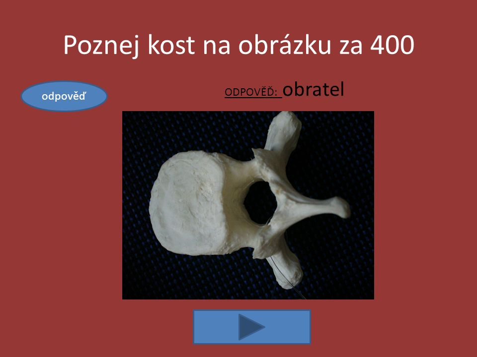 Kosti za 400 ODPOVĚĎ: pevné (chrupavkou, švy, vazivem, srůstem, vklínění) a volné (kloubně) Řekni, jak mohou být na kostře kosti spojeny, vyjmenuj.