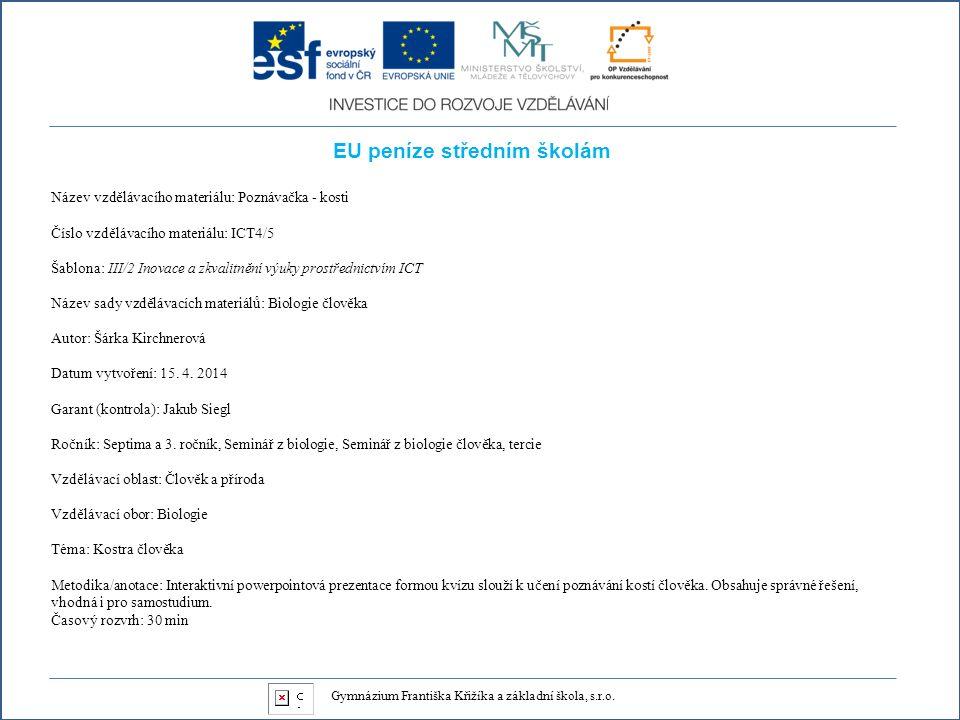 EU peníze středním školám Název vzdělávacího materiálu: Poznávačka - kosti Číslo vzdělávacího materiálu: ICT4/5 Šablona: III/2 Inovace a zkvalitnění výuky prostřednictvím ICT Název sady vzdělávacích materiálů: Biologie člověka Autor: Šárka Kirchnerová Datum vytvoření: 15.