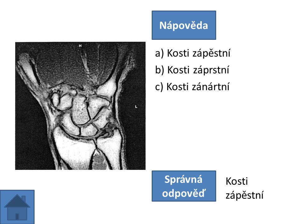 a) Kosti zápěstní b) Kosti záprstní c) Kosti zánártní Nápověda Správná odpověď Kosti zápěstní