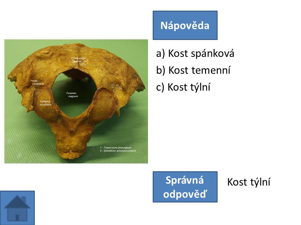 a) Kost spánková b) Kost temenní c) Kost týlní Nápověda Správná odpověď Kost týlní